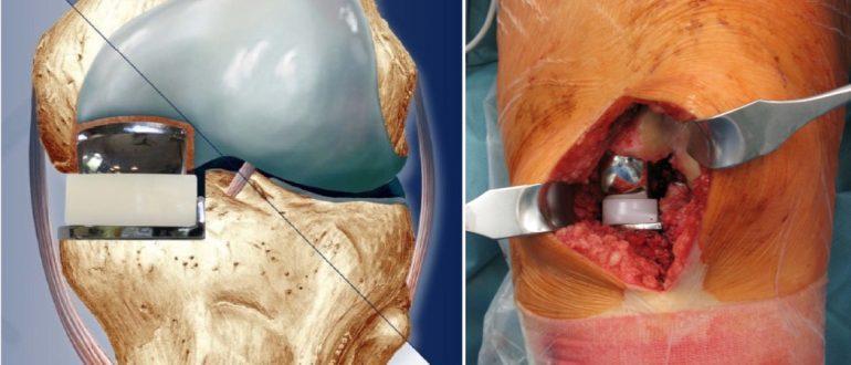 Mało inwazyjna endoproteza kolana